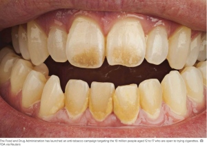 Teeth_Smoking